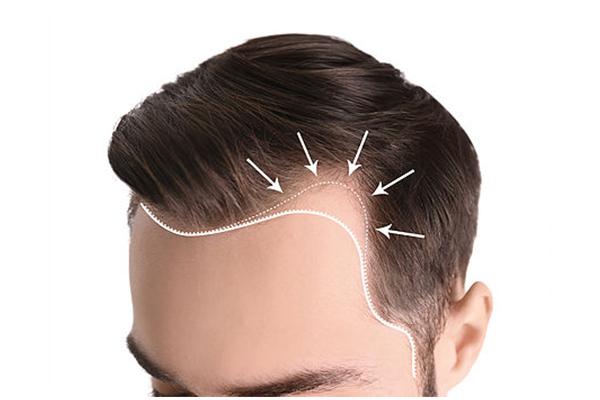 traşsız saç ekimi
